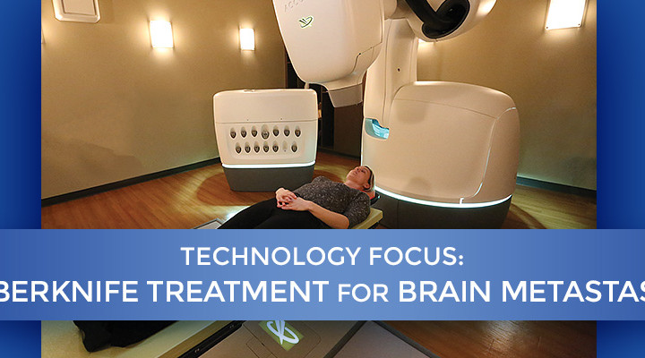 tech-focus-cyberknife-header