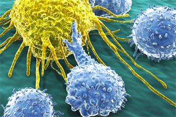 Image of Cervical Cancer