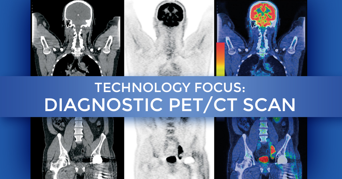 Technology Focus Diagnostic Pet Ct Scan At Summit Cancer Centers